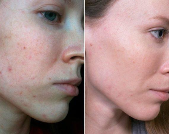 anons-acne-1024x651