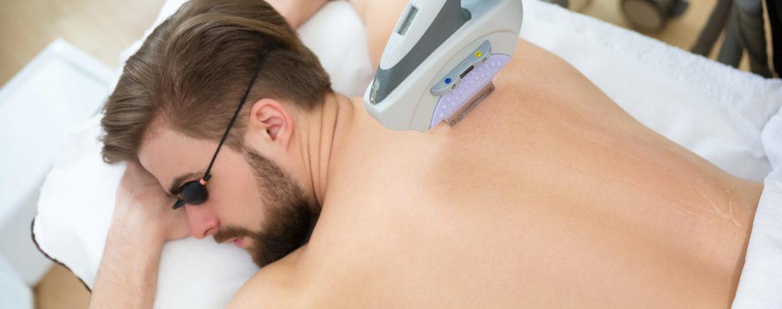 Лазерная эпиляция плеч