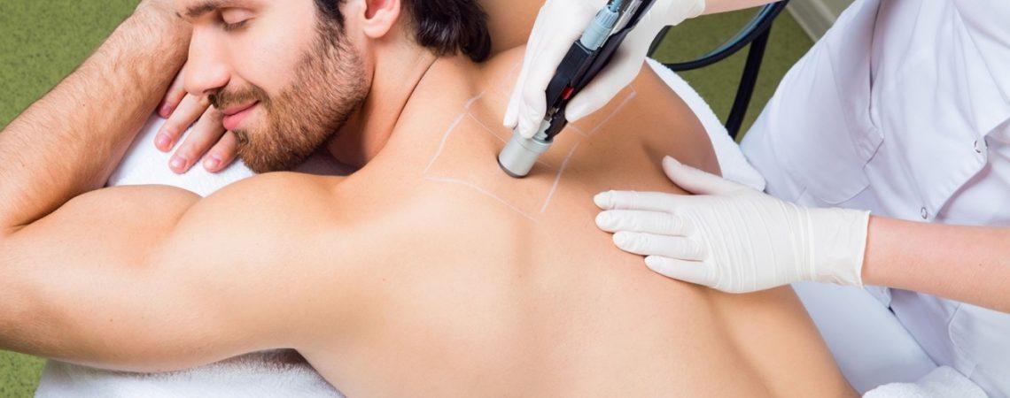 Лазерная эпиляция спины