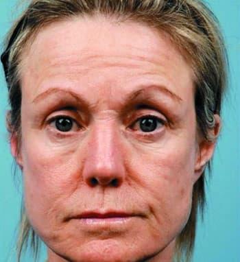 Озонотерапия лица