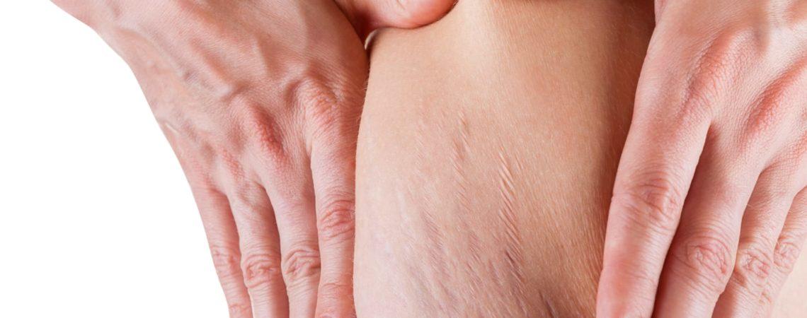 Антицеллюлитный массаж после родов
