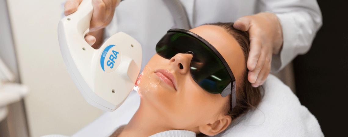 Лазерная терапия как прорыв в лечении акне