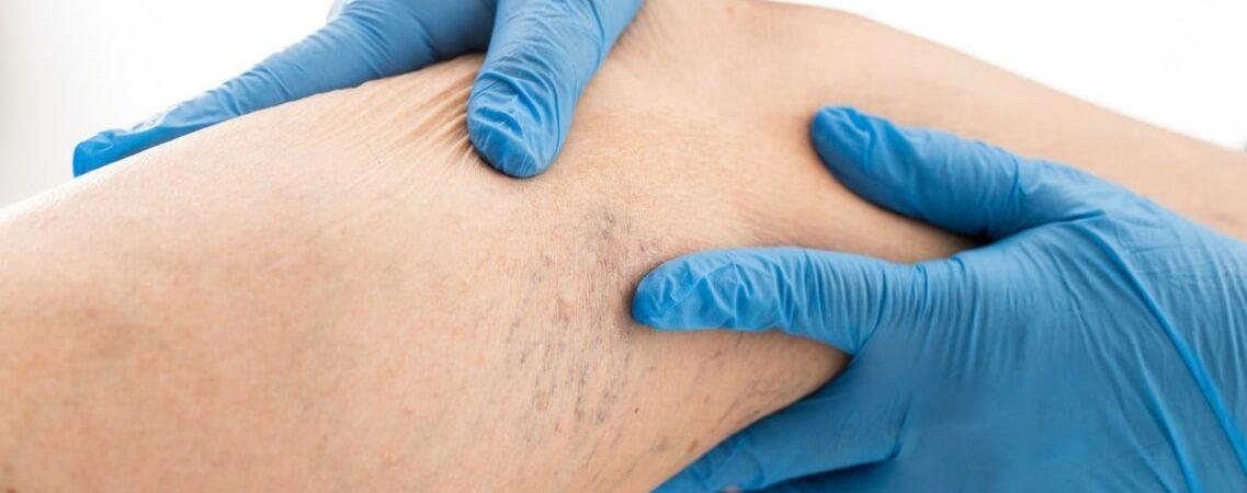 Можно ли делать антицеллюлитный массаж при варикозе? И почему?