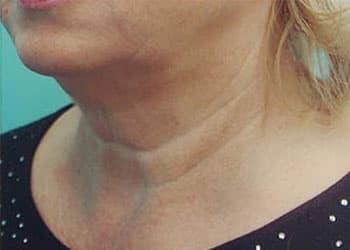 Лимфодренажный массаж шеи