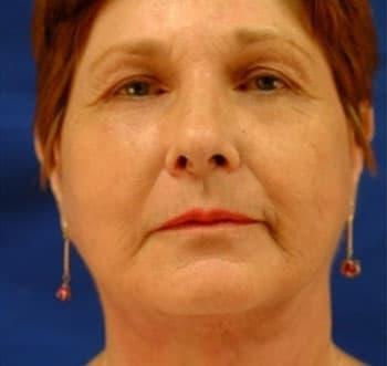 Melsmon плацентарная терапия