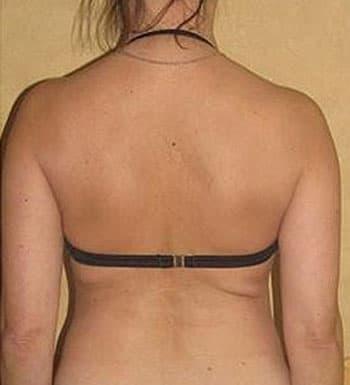 Миостимуляция спины
