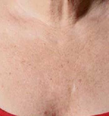 Озонотерапия груди