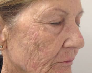 Плазмолифтинг - регенерация кожи
