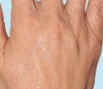 Ревитализация кожи RENEALL-BODY