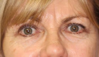 Термолифтинг глаз