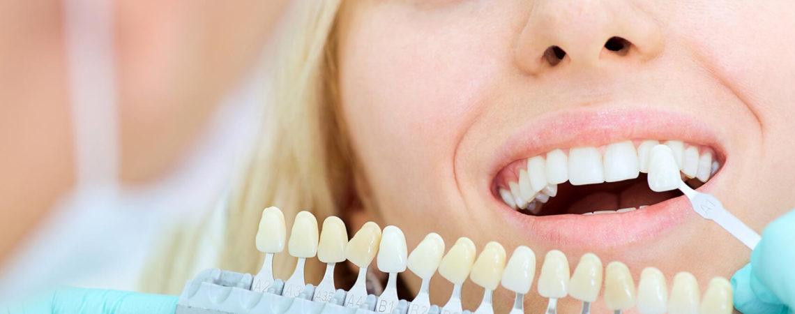 Эстетическая стоматология: реставрация, виниры, отбеливание