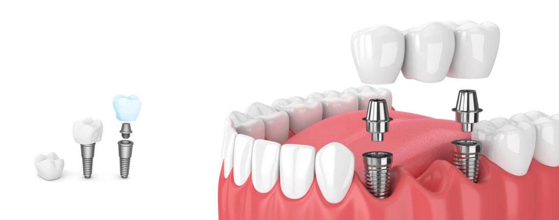 Имплантация при полном отсутствии зубов (адентии)