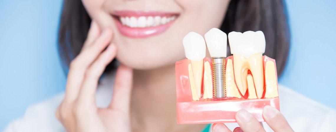 Имплантация зубов: что важно знать