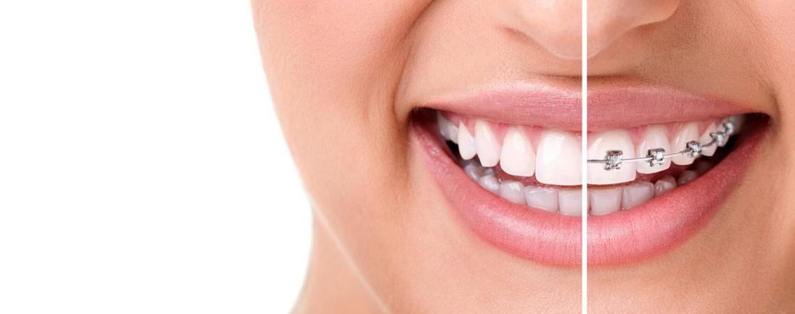 Ортодонтия (исправление прикуса): брекеты, капы