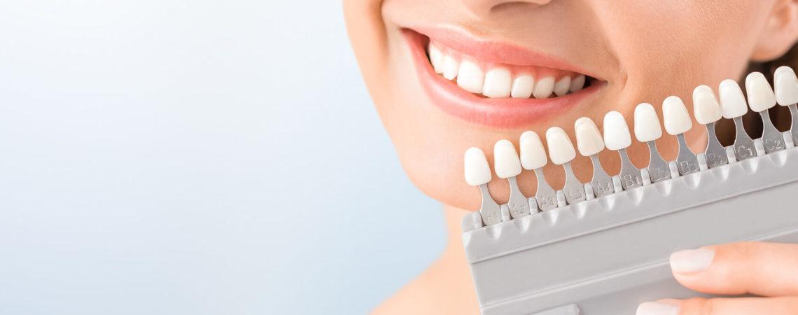 Виниры на зубы (Голливудская улыбка)